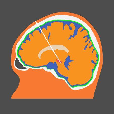 Illustration der tiefen Hirnstimulation im Nucleus subthalamicus zur Behandlung der Parkinson-Krankheit.