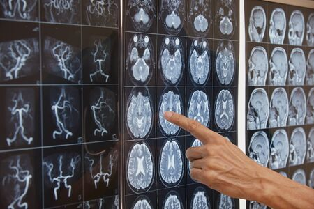 Close-up view of a doctor hand pointing at brain magnetic resonance imaging film on the light box in operating room