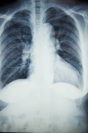 An asian female normal chest x-ray on the light box in radiology room