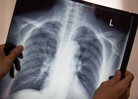 Doctor holding chest x-ray film and interpreting the film in radiologyroom