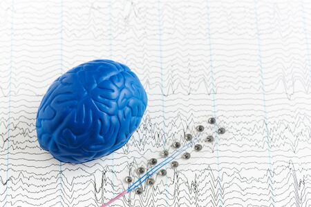 Subdural grid electrode for brain waves recording or electroencephalography and artificial brain model on EEG background