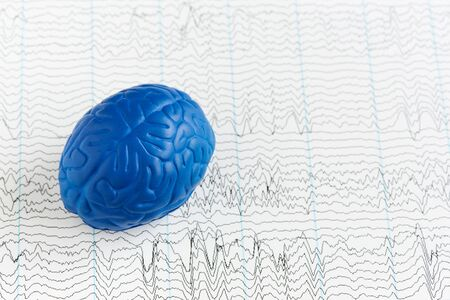 Human brain model on background of brain waves from electroencephalography Stock fotó - 140534468