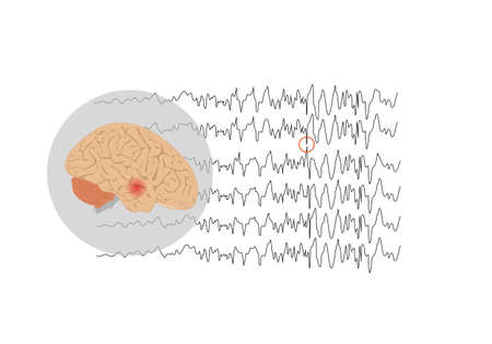 Vector illustration of human brain and abnormal brain waves waves representing focal seizure at temporal lobe Stock Illustratie