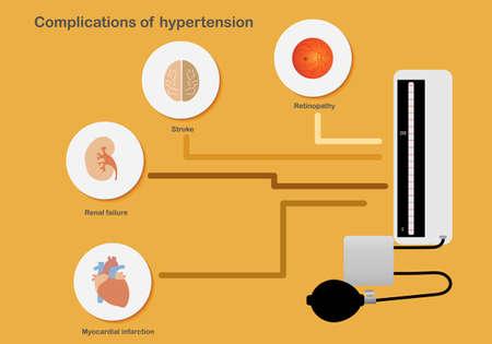 Complications of hypertension affecting organs. Illustration of sphygmomanometer, brain, kidney, heart and retina. Illustration