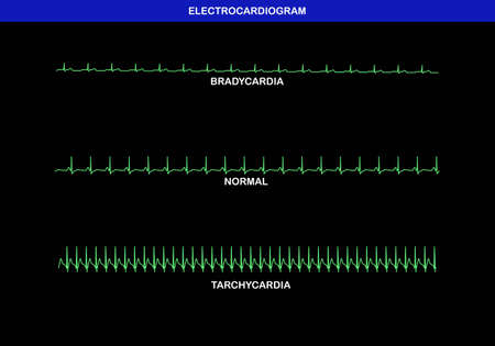 Illustration of different heart rate on electrocardiogram. Slow or bradykinesia, normal and fast or tachycardia herat rate.