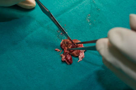 Doctor using surgical knife cut brain specimen after remove abnormal vascular or cerebral cavernous malformation from the brain