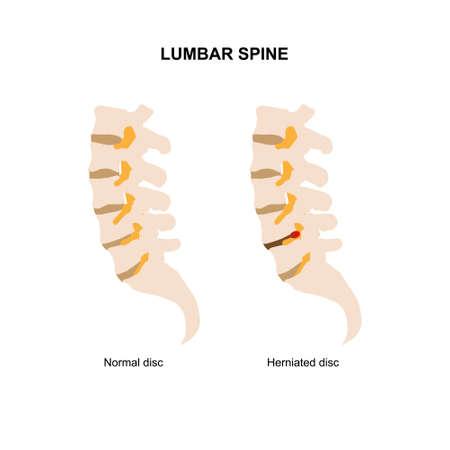 Vector illustration of human lumbar spine demonstrating normal and herniated lumbar disc.