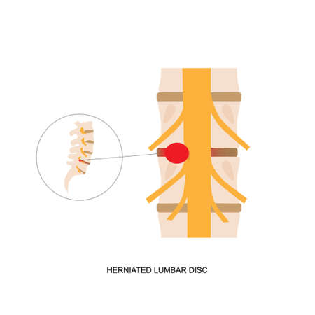 Illustration demonstration of human herniated lumbar disc. Lumbar disc herniation can cause low back pain and sciatica