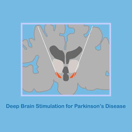 Vector illustration of deep brain stimulation at subthalamic nucleus for the treatment of parkinson's disease. Illustration