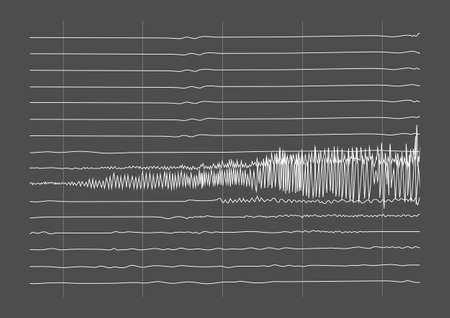 Illustration of ictal EEG recording during seizure. Seizure waves showing high amplitudes and frequency.
