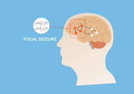 Illustration of abnormal eletrical activity in region of human brain causing focal seizure or epilepsy. Human brain and blue background.