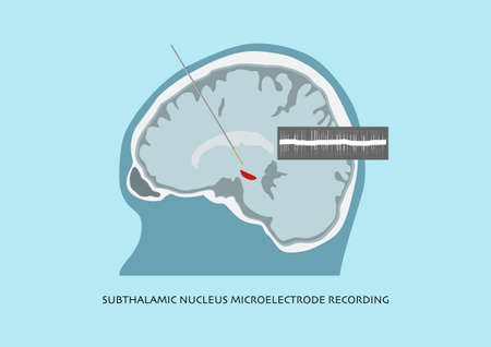 Illustration of microelectrode recording and brain waves recorded in subthalamic nucleus or STN for Parkinson disease surgery. Vektorové ilustrace