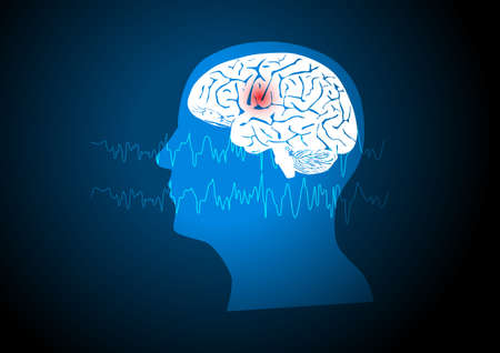 Focal seizure. Illustration of human brain and electroencephalograhy or EEG originating from one regional onset. Illusztráció
