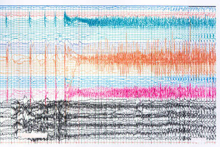 Photograph of ictal EEG recording during seizure. Seizure waves showing propagation of high amplitudes and frequency waves. Stock fotó