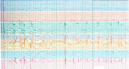 Photography of brain waves of epileptic patient showing sharp wave during  no seizure or interictal EEG.