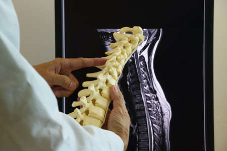 Doctor holding cervical spine model in front of MRI spine computer screen