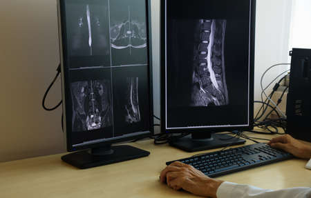 Doctor looking at lunbar spine MRI in computer monitor Stock fotó