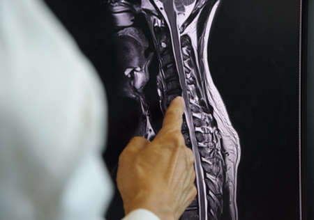 Doctor pointing at MRI of cervical spondylosis on computer screen.