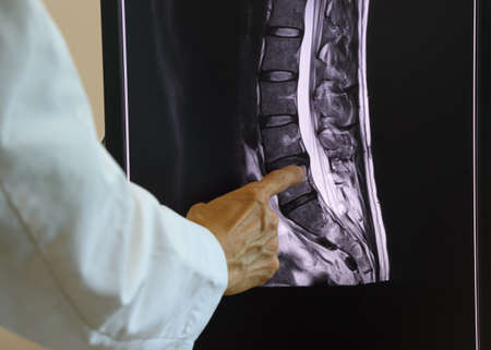 Doctor pointing at MRI of lumbar spondylosis on computer screen. Stock Photo