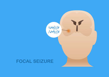 Temporal lobe epilepsy. Vector illustration of human focal seizure. Abnormal brain waves arising from the side of brain