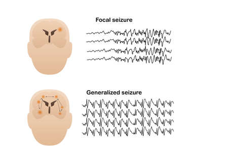Vector illustration of seizure types demonstrating by onset and brain waves. Focal seizure and generalized seizure. Electroencephalograhy or EEG of seizures. Illustration