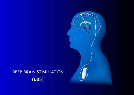 Neuromodulation with deep brain stimulation or DBS for treatment of parkinson disease and various neurological disorders.