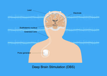 Neuromodulation with deep brain stimulation or DBS at subthalamic nucleus for treatment of Parkinson's disease. Illustration of medical equipment and neural signal. Illustration