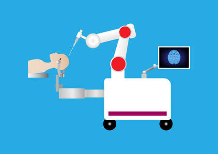 Robotic assisted for brain surgery. Minimally invasive in neurosurgery. Robot with arm and computer display.