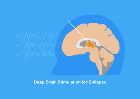 Deep brain stimulation or DBS at anterior thalamic nucleus for treatment of drug resistant epilepsy. Illustration