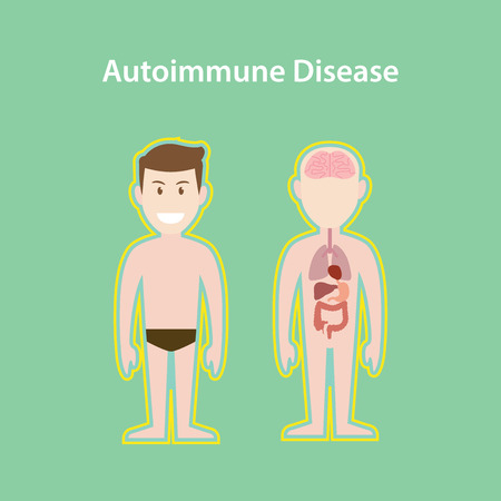 autoimmune disease system illustration with cartoon human man body with protection effect vector Illustration