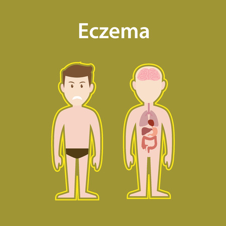 contagious: eczema sick illustration with human body full stand and organ with protection sign and text poster vector