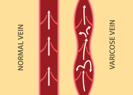 Comparison compare between normal vein and varicose vein in vertical alignment. Vector Illustration