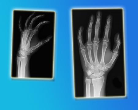 thumb x ray: hands x-ray
