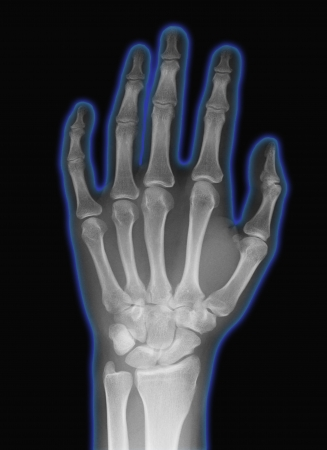 thumb x ray: hand x-ray