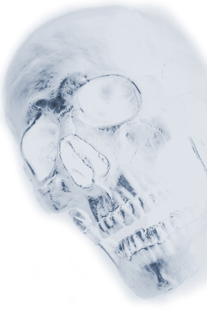 human skull x-ray background photo