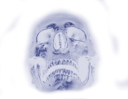 x rays negative: human skull x-ray background