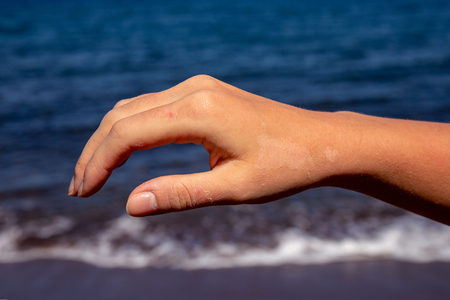 Female hand with red sunburn skin on blue sea background. Sun burned skin peeling. Seaside threat. Dangerous sun of tropical country. Summer vacation health problem. Sunscreen for sun burn prevention