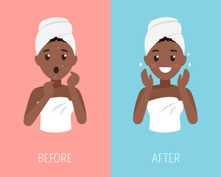 Black woman skin care. Before and after face treatment. Facial skin problems flat illustration