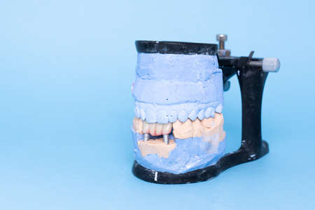 Veneers and crowns on gypsum dental artificial jaw on blue background. Upper and lower jaws plaster model with prepared teeth on diagnostic model. Concept of aesthetic dentistry. restoration of teeth. Close-up view of dental jaws prosthesis