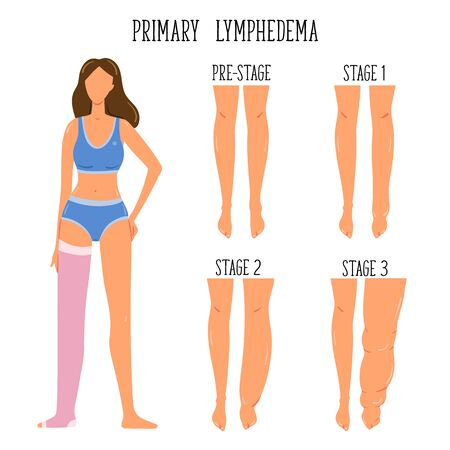 Primary Lymphedema stages. Lymphatic system disfunction. Elephantiasis, legs swelling disease. Young girl wearing compression stocking. Ilustração