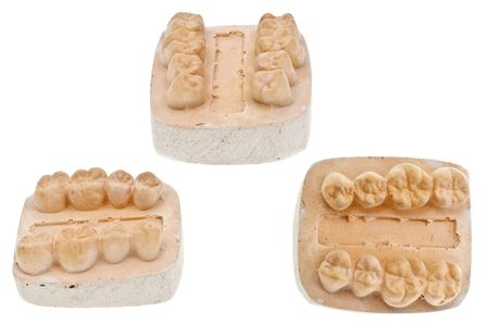 plaster mould: Plaster mould for manufacturing artificial teeth Stock Photo