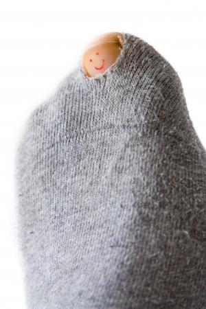 Close-up beeld van een sok met een gat en een smiley op de teen nagel.