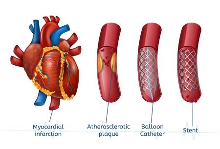 Projekt szablonu zawału mięśnia sercowego Ilustracje wektorowe