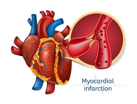 Myocardinfarct sjabloonontwerp