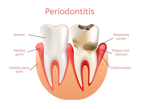 Periodontitis, Inflammation of Gums 3d Realistic Vector Illustration of Tooth Periodontal Dental Loss. Infection Pulpitis with Plaque