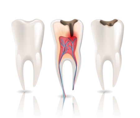 Enamel Caries Infection and Health Tooth 3d Realistic Pulpitis. 3d Realistic Vector Illustration of Dental Canal Periodontitis Medical Structure. Stomatology Health Care.