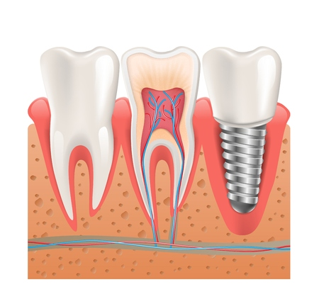 Realistic Healthy Teeth Structure Dental Implant. Vector Illustration od Dental Concept Poster with Artificial Metal Screw of Orthodontic Prosthesis.