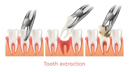 Decay Tooth Extraction Procedure vector illustration Ilustração