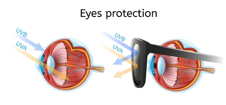 Eyes Protection Vector Infographic with Human Eyeball Anatomical Structure in Cross Section View Comparing Sun Rays Impact on Naked and Protected Black Sunglasses Eye Isolated on White Иллюстрация