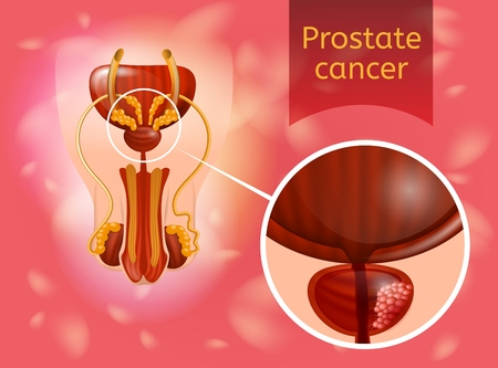 Prostate Cancer Realistic Vector Poster or Concept with Cancerous Tumor Cells in Prostate Gland Illustration. Most Common Oncological or Urological Disease of Man Reproductive System Anatomical Scheme